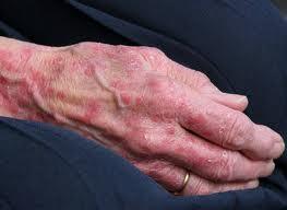 alergie na sperky